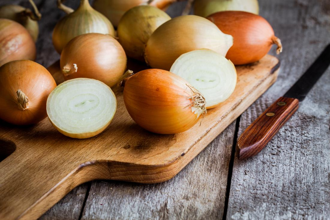 Onions on a chopping board.