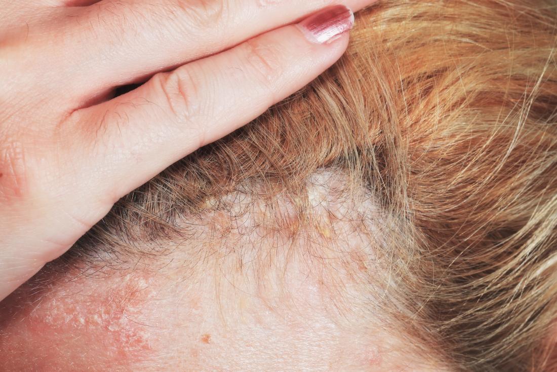 bleeding scalp psoriasis)