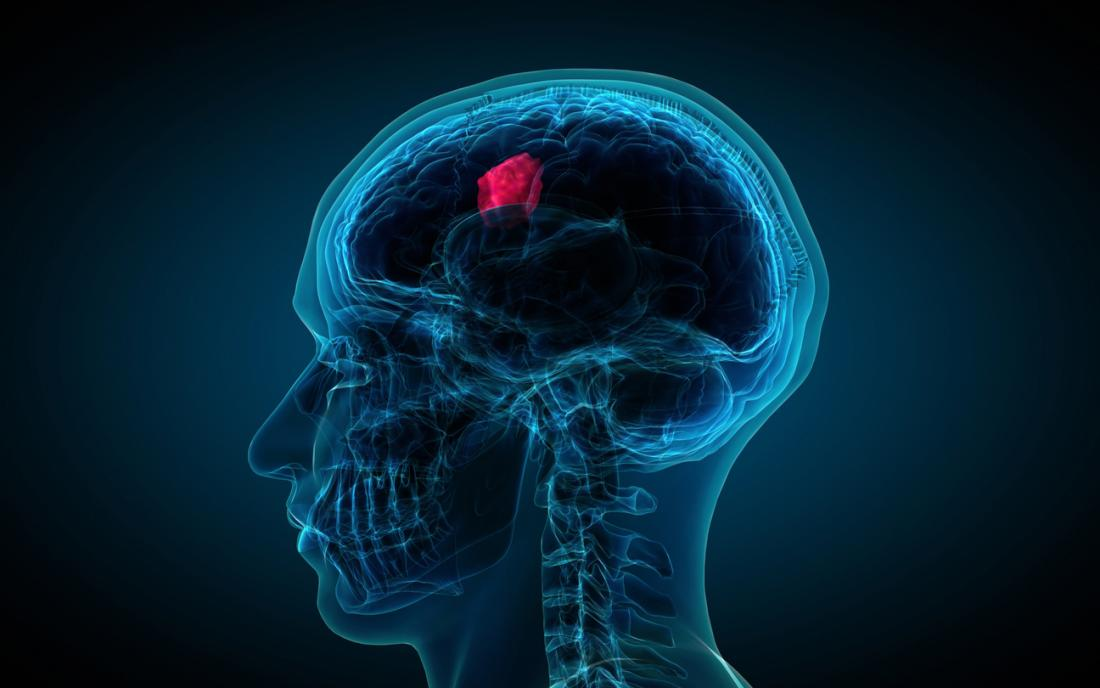 an illustration depicting a brain tumor