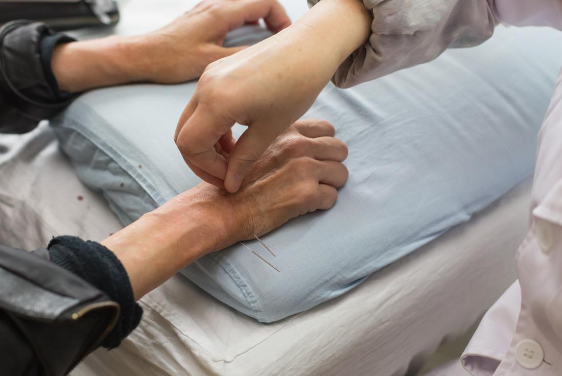 Wrist acupuncture may help with diabetes