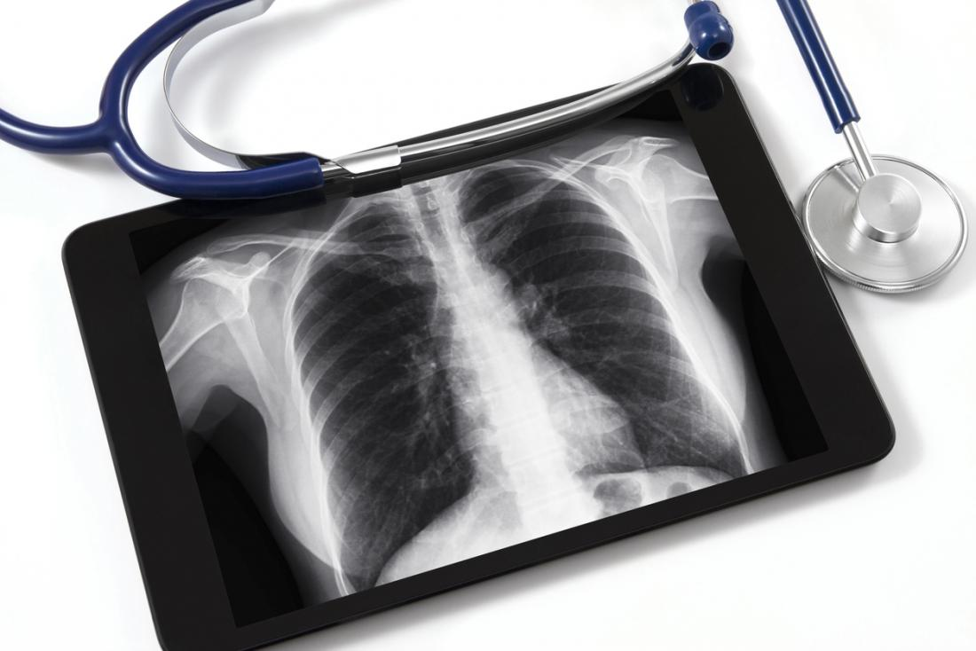 X-ray of lung with stethoscope