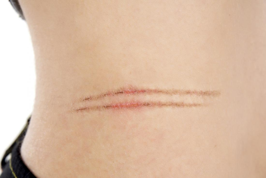 two cuts on the skin