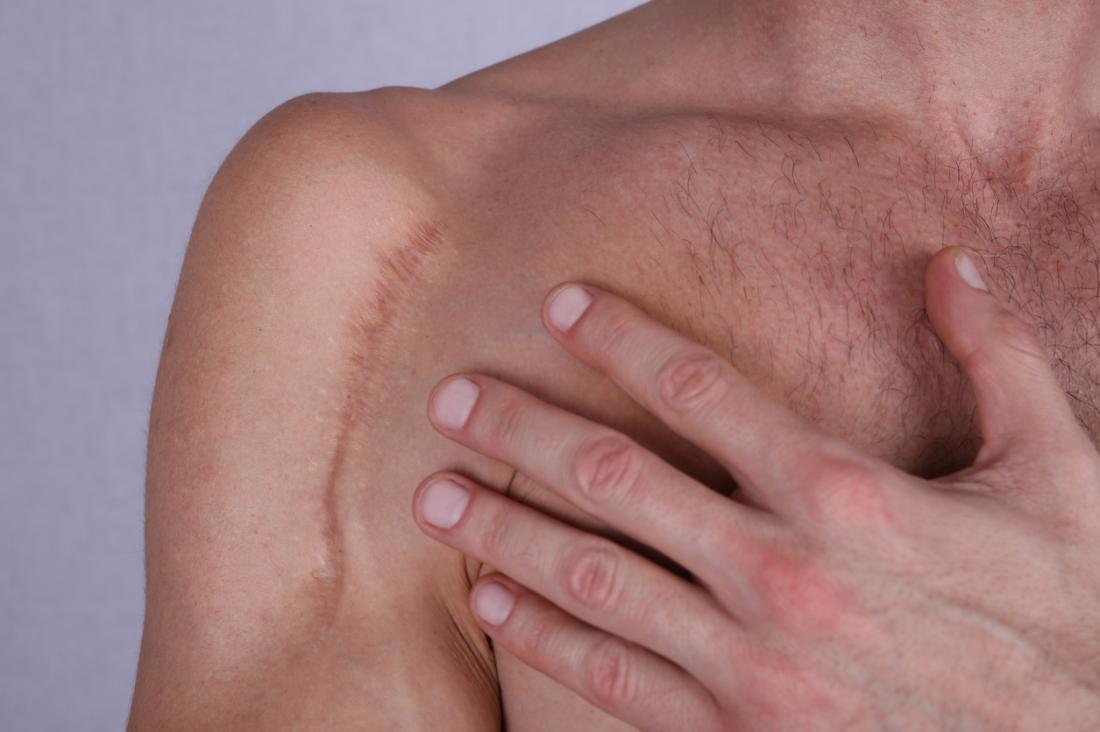 Scar along a man's shoulder.
