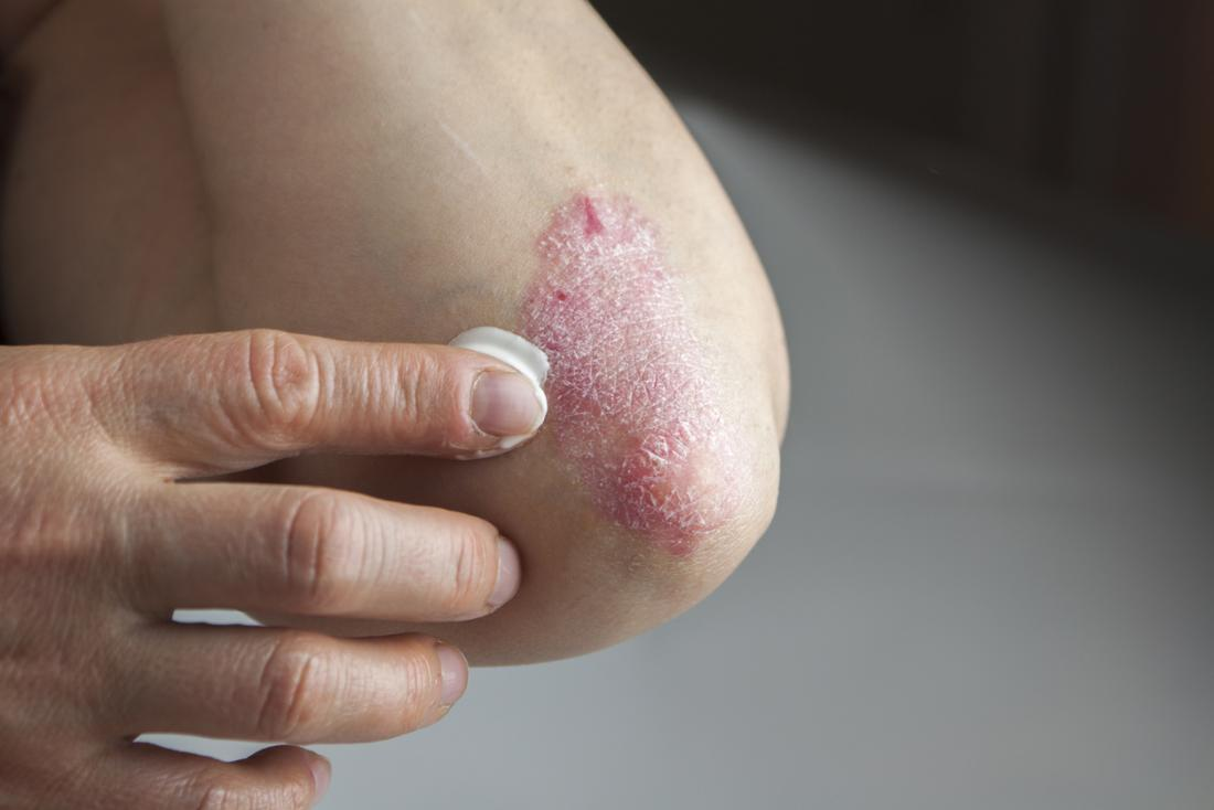 applying cream to psoriasis on elbow
