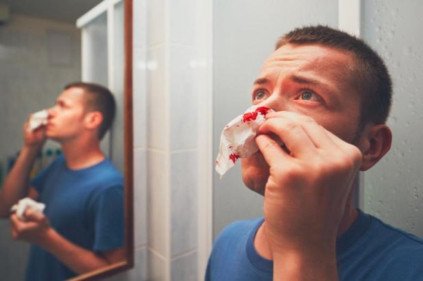 رجل مع أنفه ينزف الورم الدموي