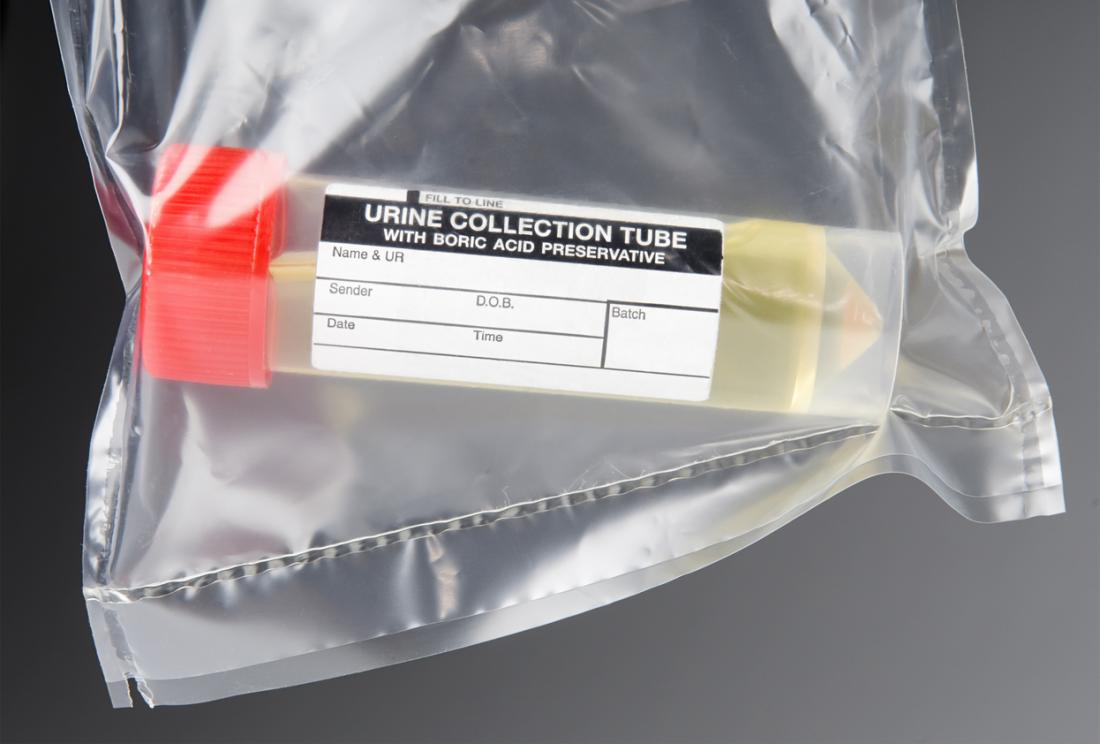 Urine sample for a test in a collection tube, in a clear plastic bag.