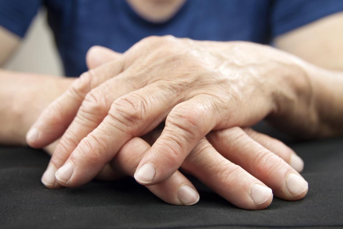 a woman with rheumatoid arthritis in her hands