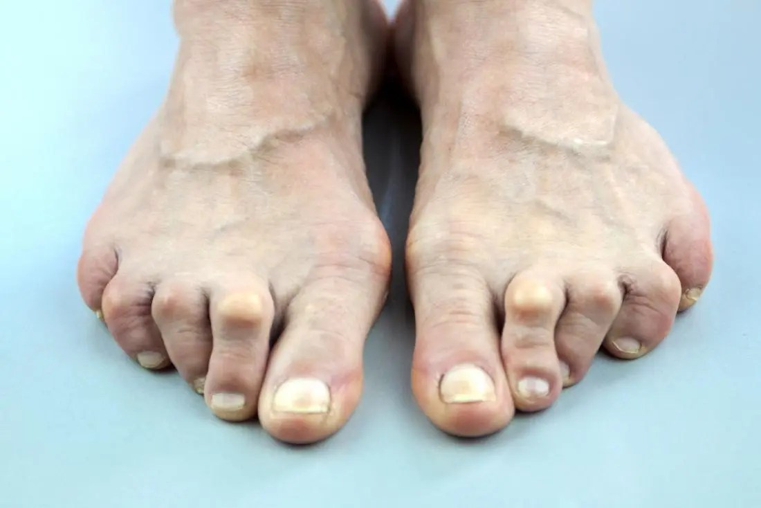 Arthritis in feet and toes.