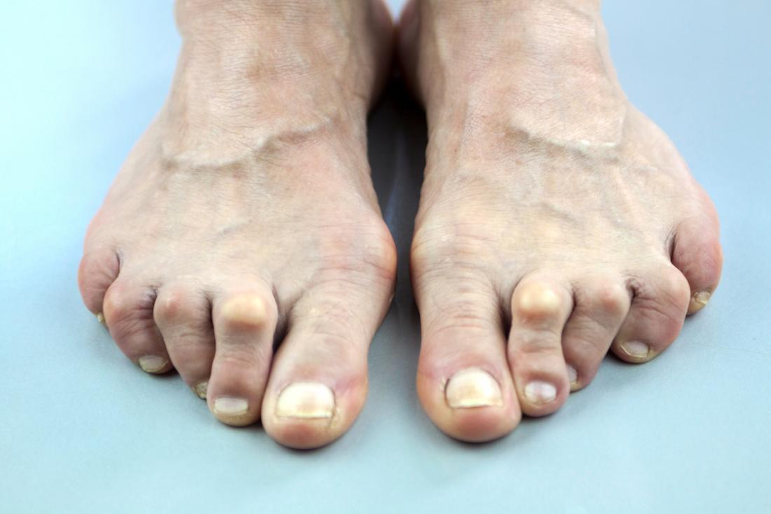 Артрит стоп и пальцев ног.