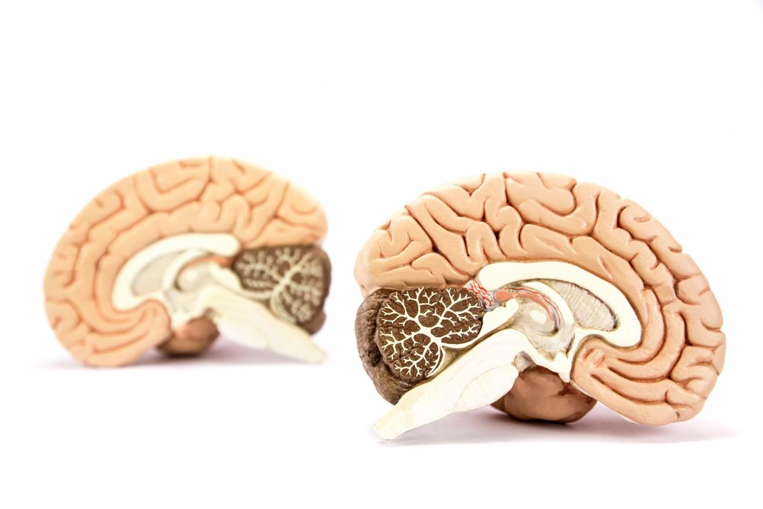 Sliced model of a brain
