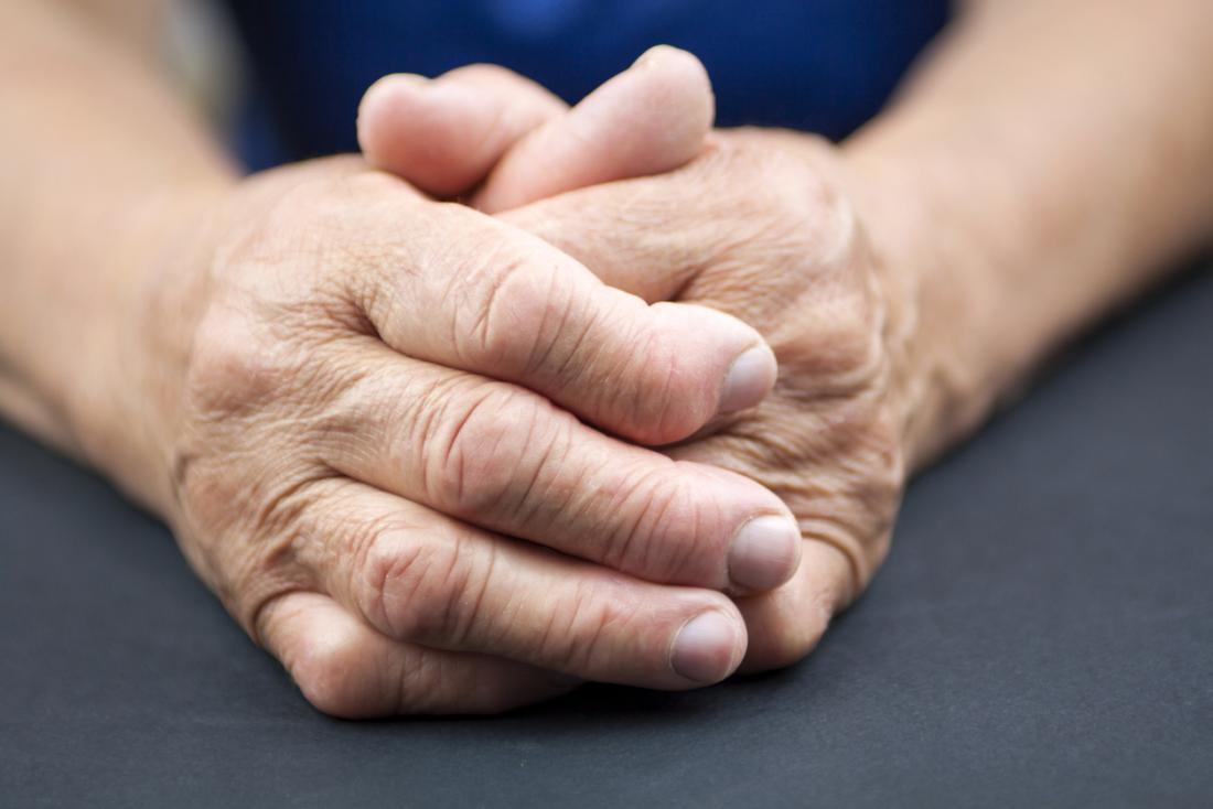Rheumatoid arthritis in senior persons clasped hands.
