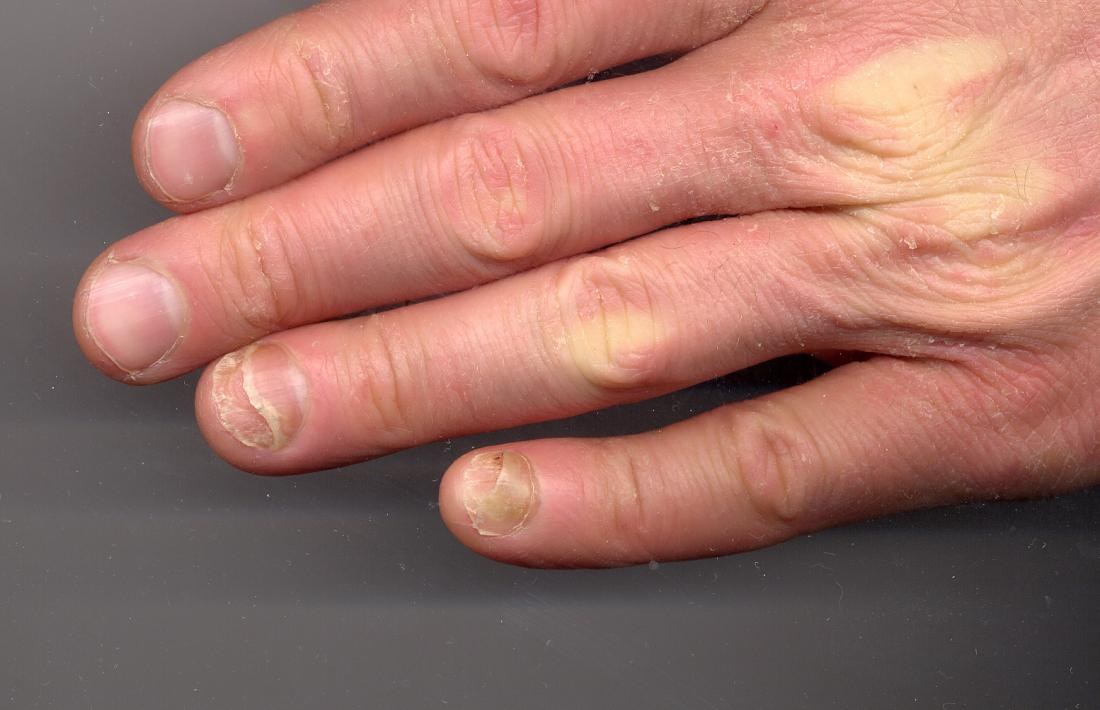 Onycholysis in fingernail. <br>Image credit: CopperKettle, (2012, September 9)</br>