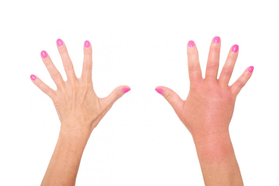 Six Causes Of Dactylitis Sausage Fingers
