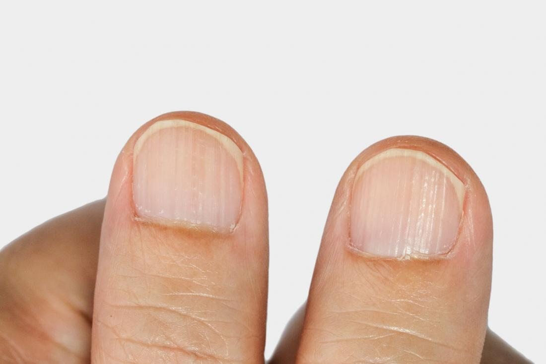 Ridges In Fingernails Types Causes And Treatment