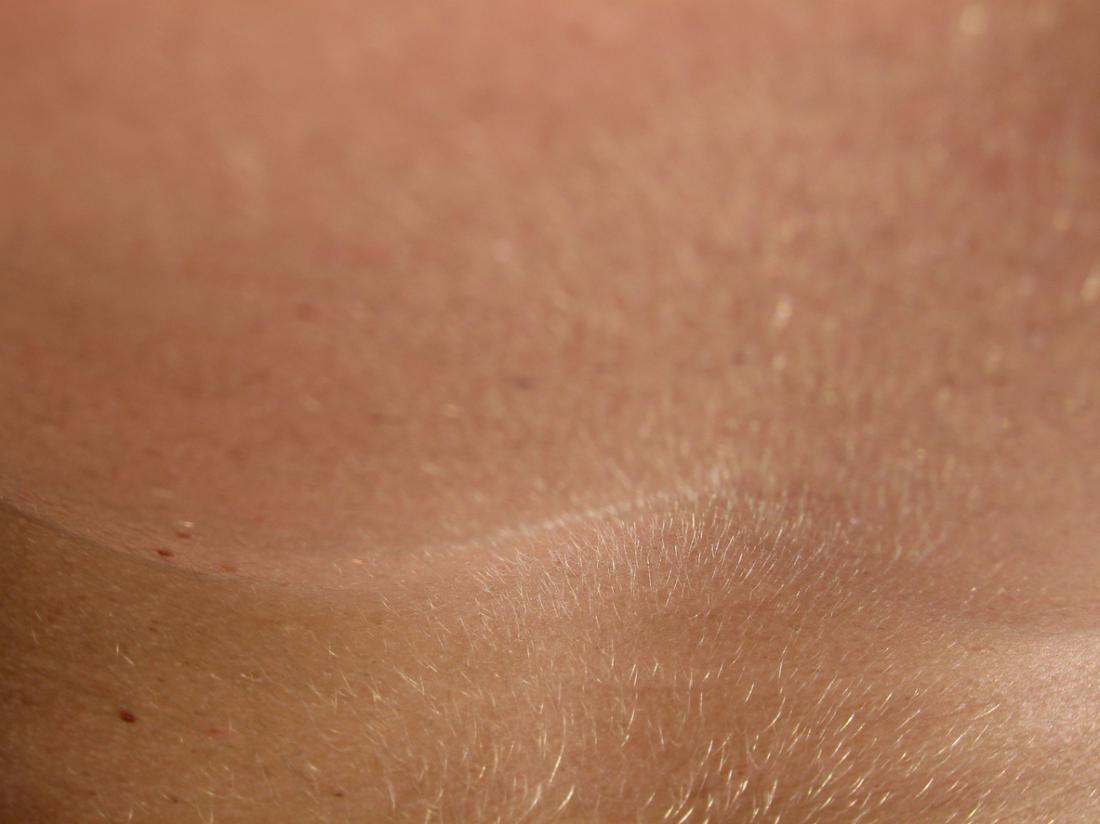 close up image of fine hair on human skin