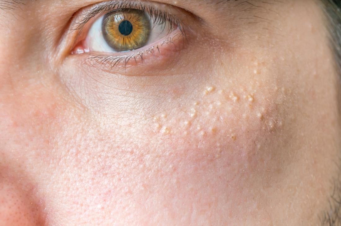 how to get rid white spots on skin