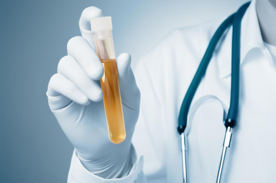 a doctor holding a sample of urine in a test tube