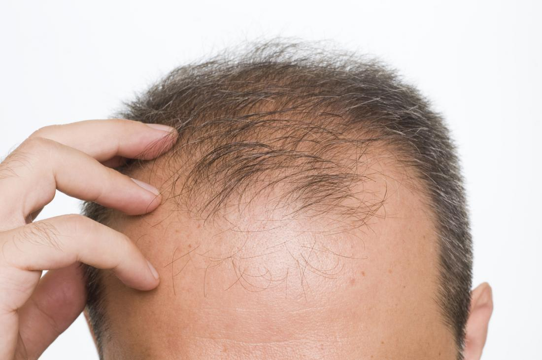 Hair loss most common in summer, fall