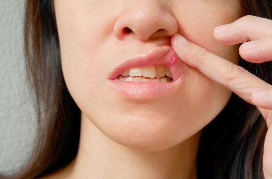 aftas en la garganta tratamiento
