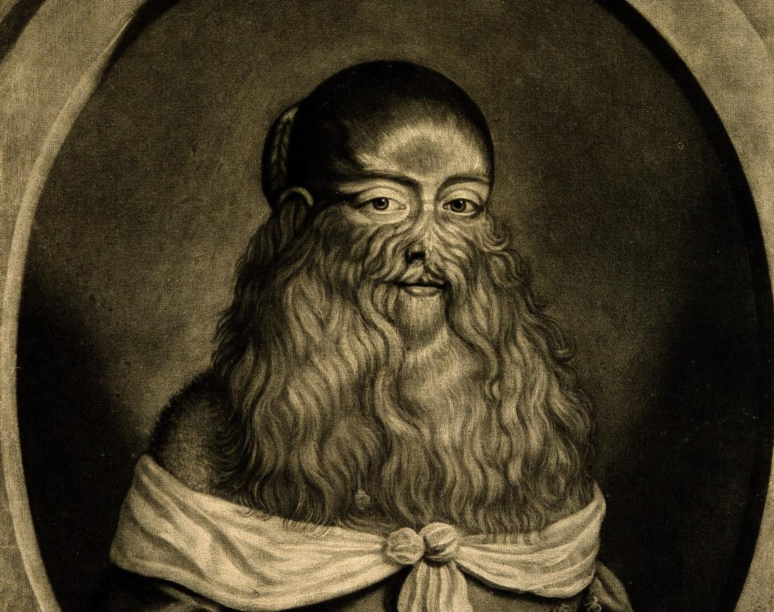 An image of Barbara Vanbeck, a lady with Hypertrichosis, by R. Gaywood, 1656.