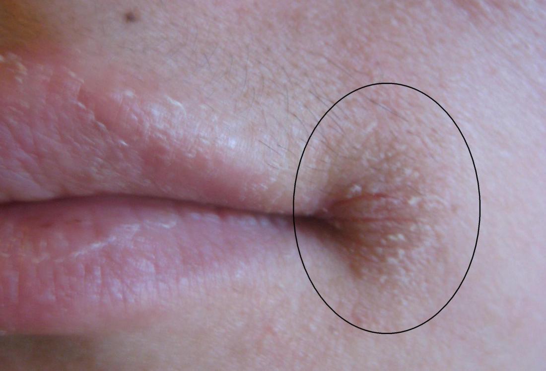 Angular Cheilitis Symptoms Treatment And Causes