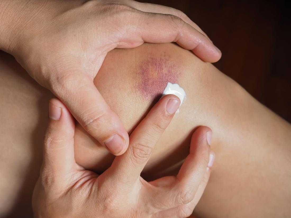 Person applying cream or ointment to bruised skin.