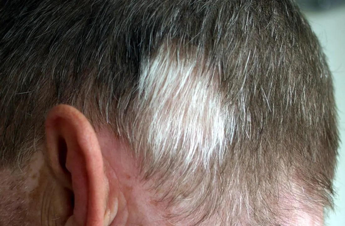 Poliosis causing a white patch of hair. Image credit: Klaus D. Peter, Gummersbach, Germany, (2011, November 5)