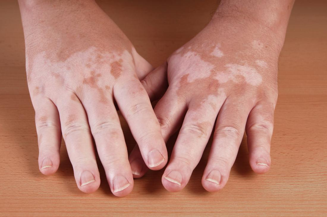 Hypopigmentation, or vitiligo, in the hands.