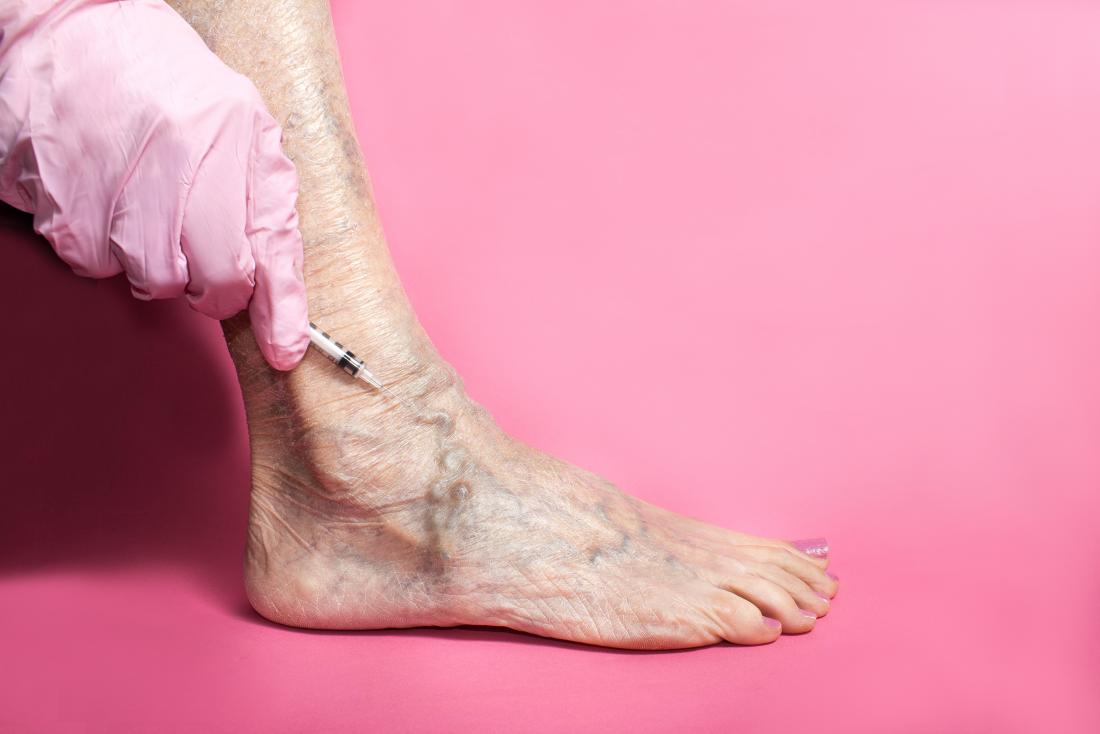 Sclerotherapy being performed on varicose veins in foot.