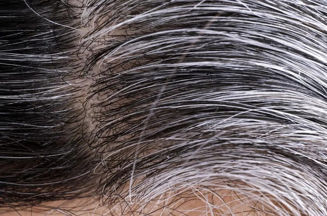 White and gray hairs growing on person's head.