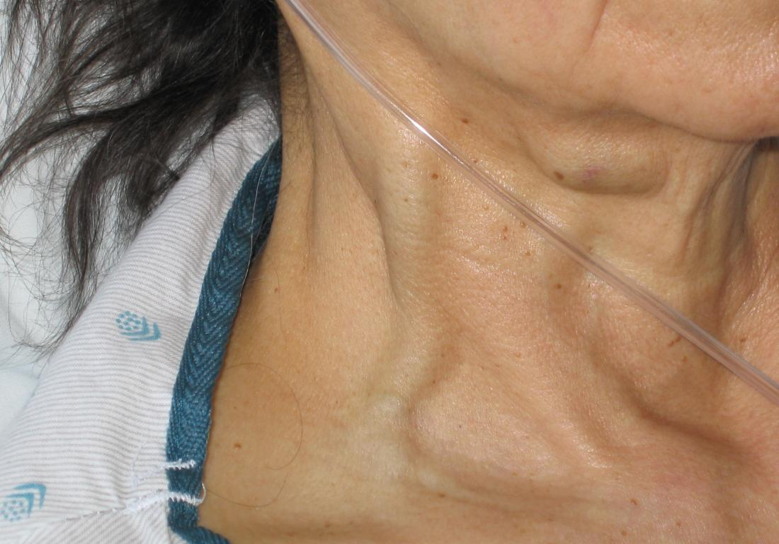 Jugular Vein Distention Jvd Causes Risk Factors And