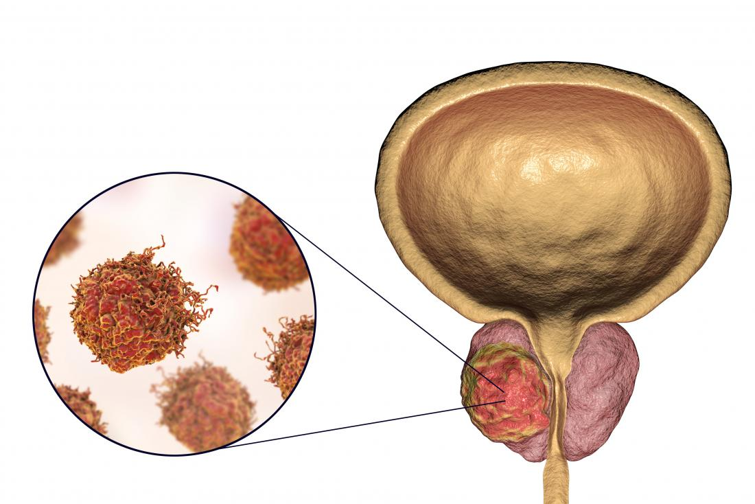 prostate cancer illustration