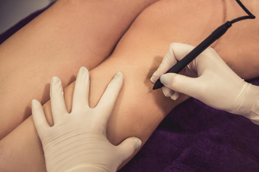 Laser Hair Removal Vs Electrolysis What Is The Difference
