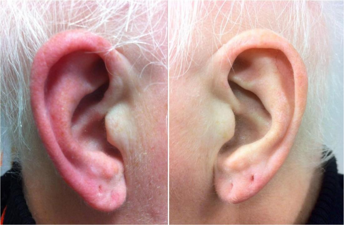 Red ear syndrome <br>Image credit: Giorgio Lambru, Sarah Miller and Manjit S Matharu, The Journal of Headache and Pain, 2013</br>