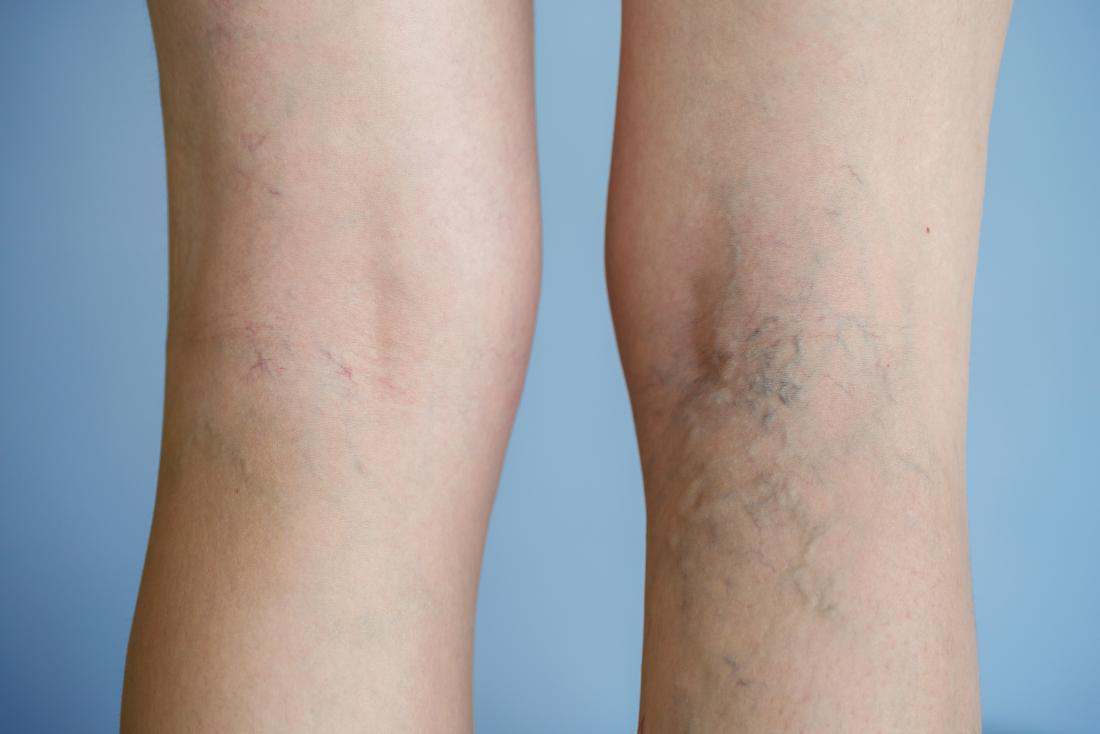 Varicose veins on backs of legs.