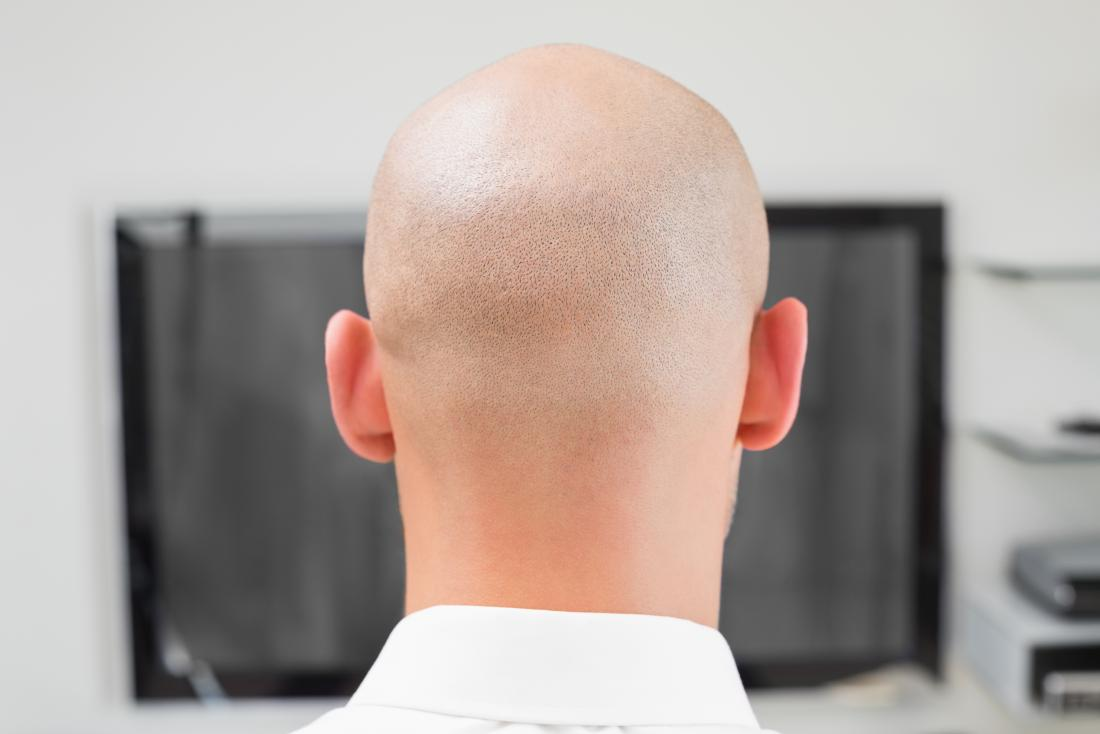 Back of head of man with alopecia totalis, in front of computer at work.