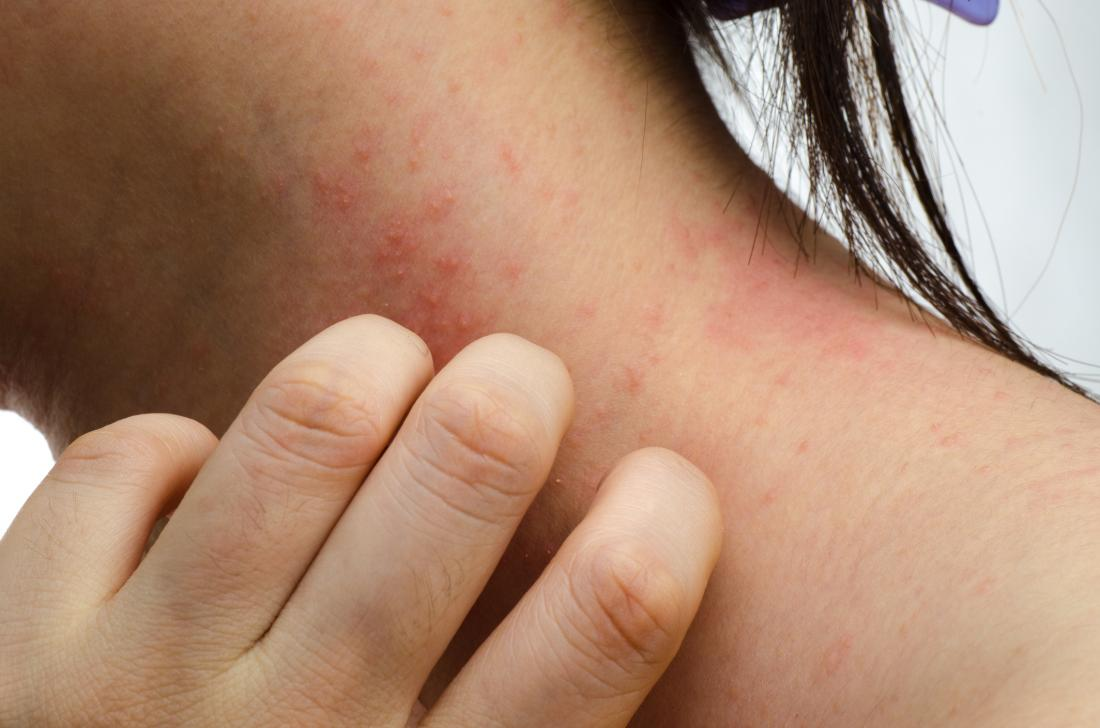 a woman with eczema on her neck