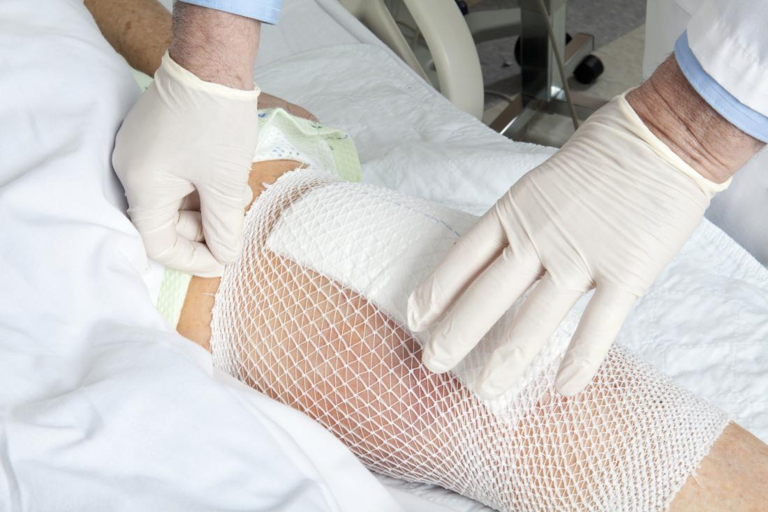 knee replacement bandage Knee replacement infection
