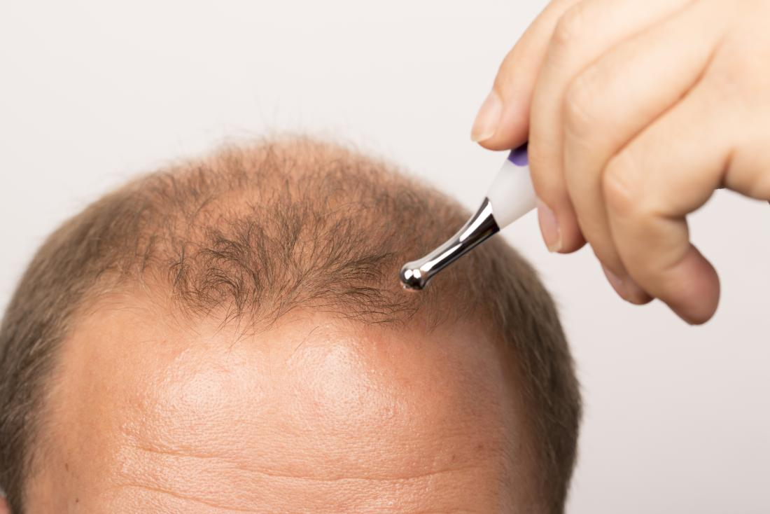 Receding hairline: Treatment, stages, and causes