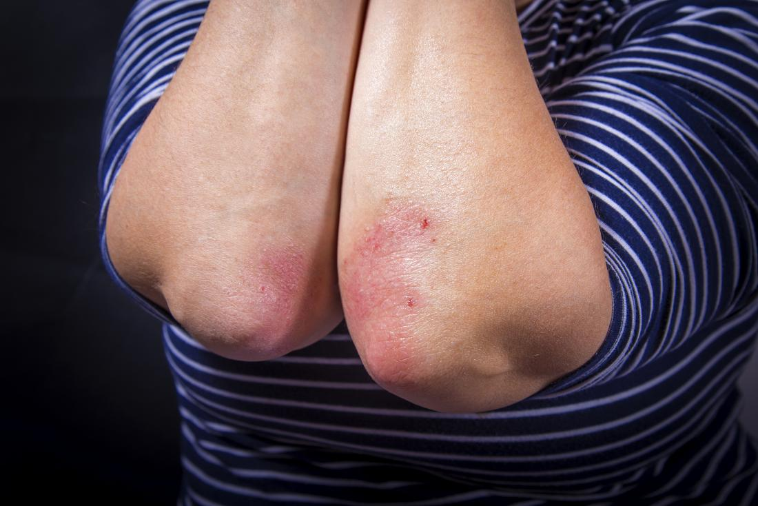 Psoriasis spread from one elbow to another elbow on the same person.