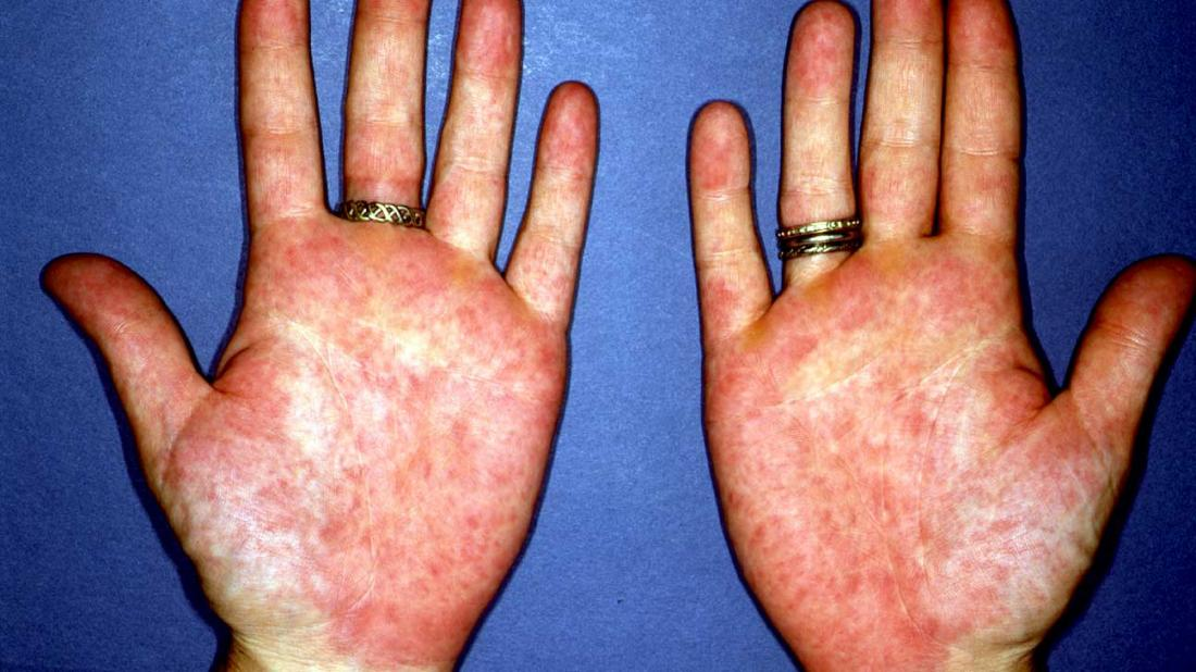 Palmar erythema causing red palms.
