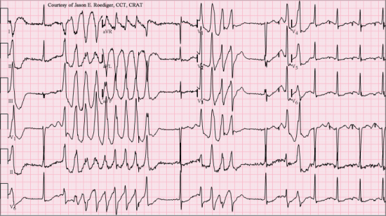 EKG of torsades de pointes. Image credit: Jer5150, (2012, June 3)