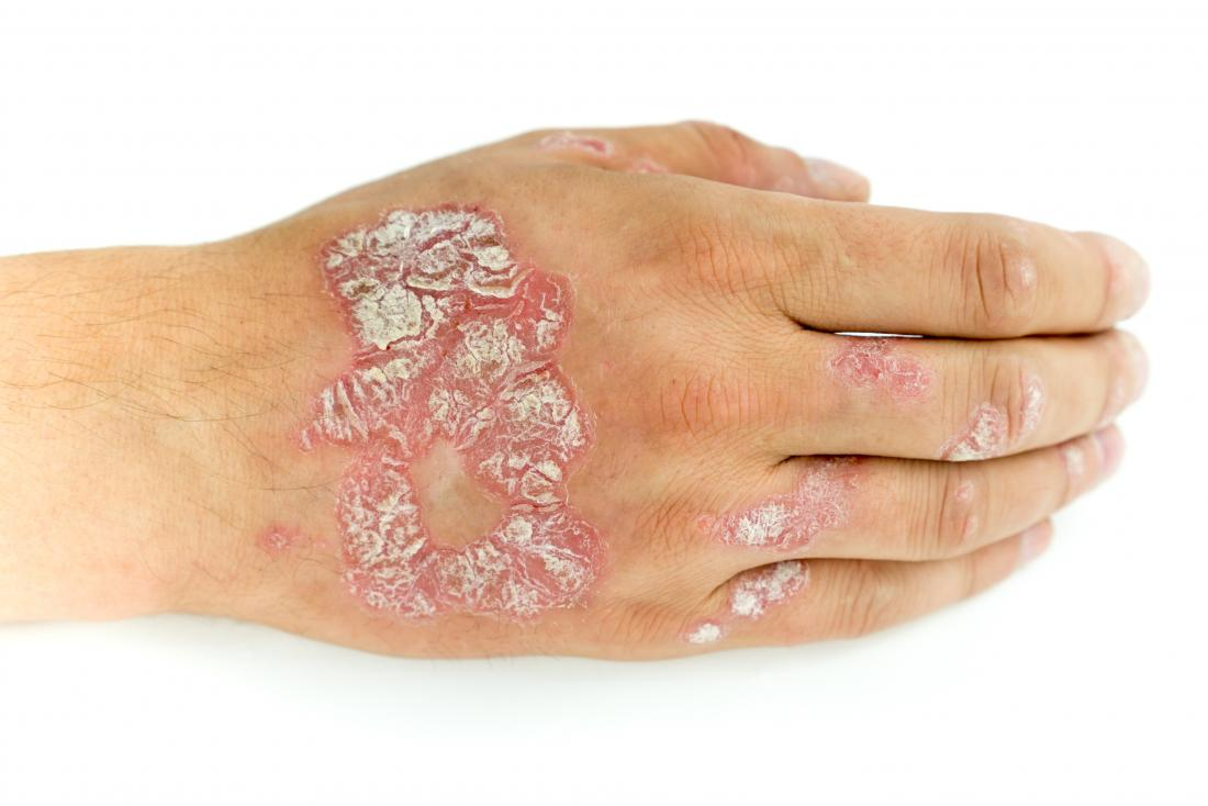 Psoriasis on back of hand.