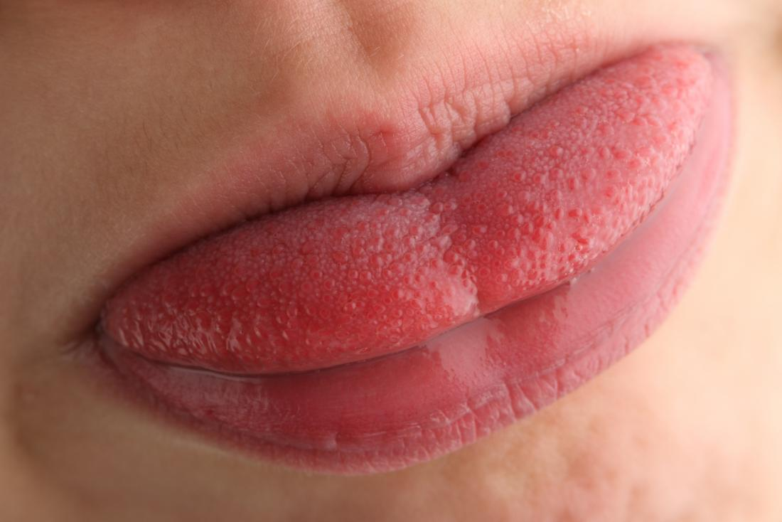 Taste buds on person's tongue.