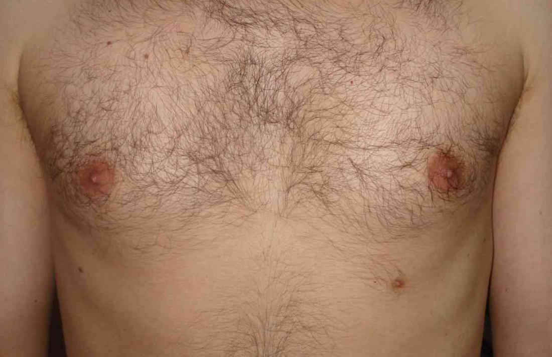 Supernumerary third nipple. Image credit: Zureks, (2009)