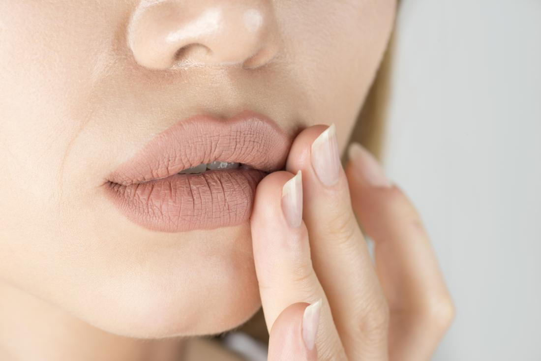 Close up of woman with oral thrush touching lips.