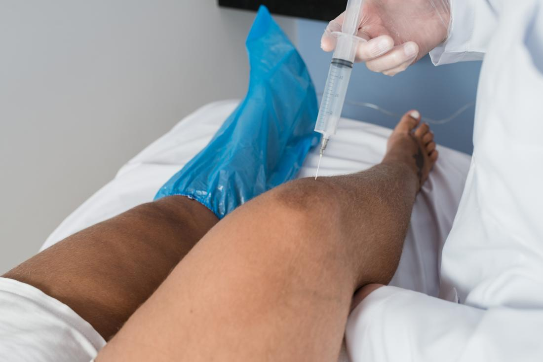 Ozone therapy being applied to knee via injection.