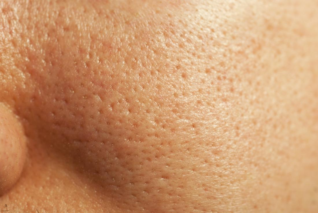 Close up of large pores on the face and how to get rid of large pores