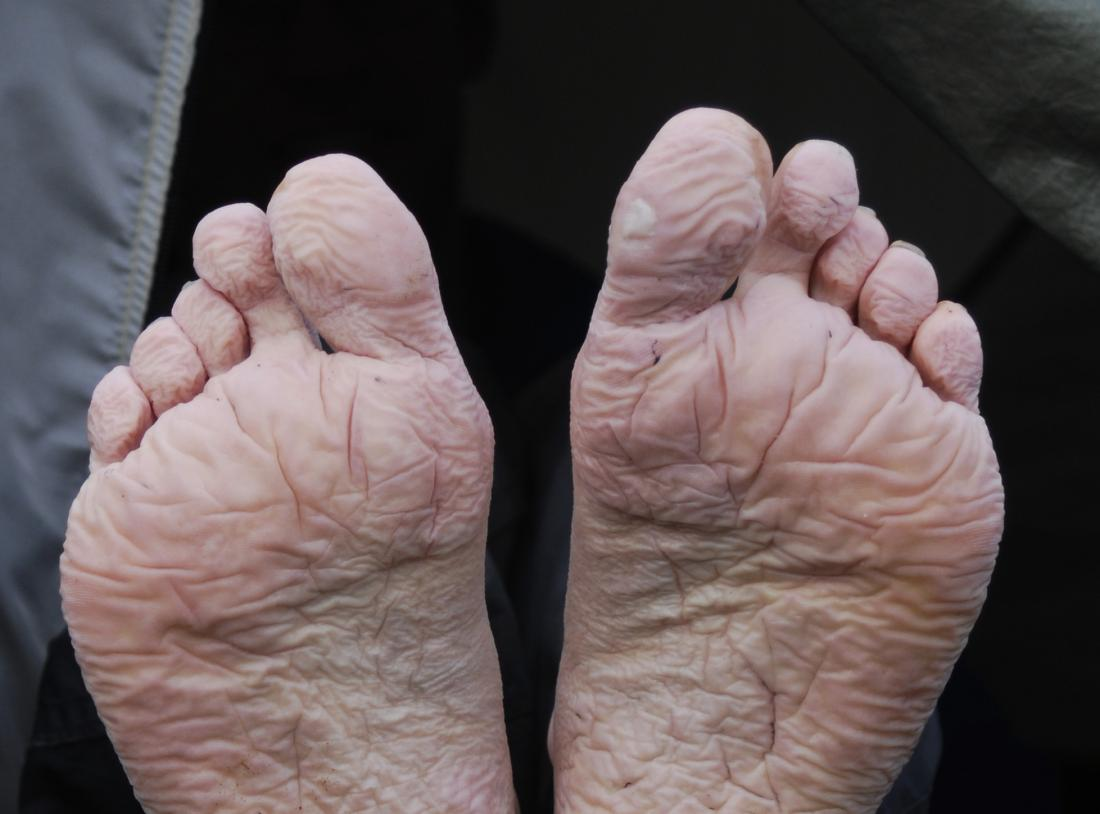 Trench foot <br>Image credit: Mehmet Karatay, 2007</br>