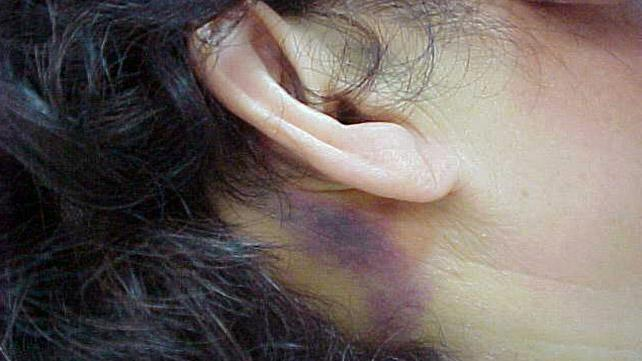 A bruise behind the ear may be a battle sign